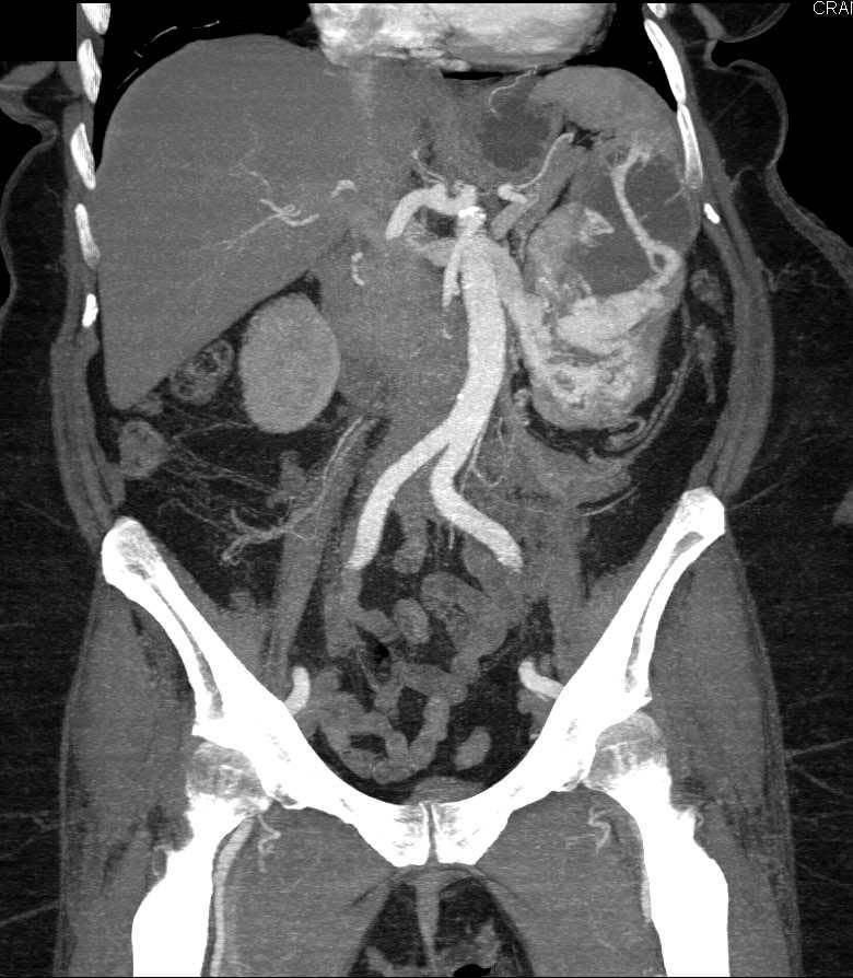 Cystic Splenic Hemangioma - CTisus CT Scanning