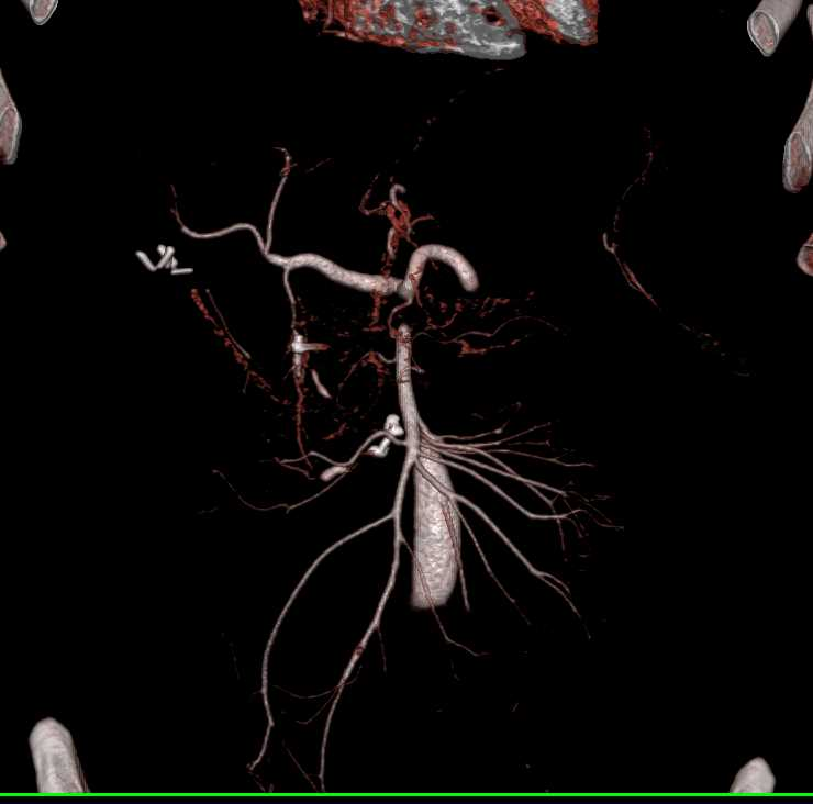 Large Splenic Infarction - CTisus CT Scanning