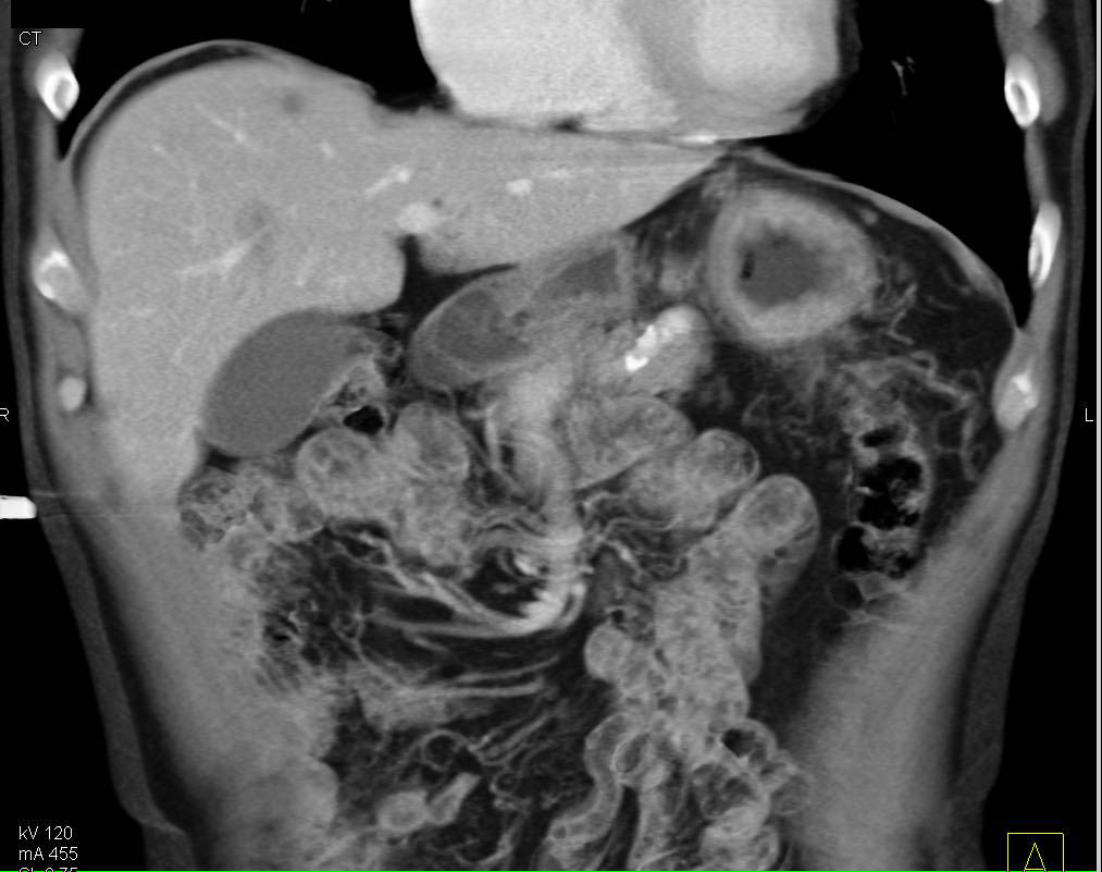 Adenocarcinoma of the Gastric Fundus - CTisus CT Scanning