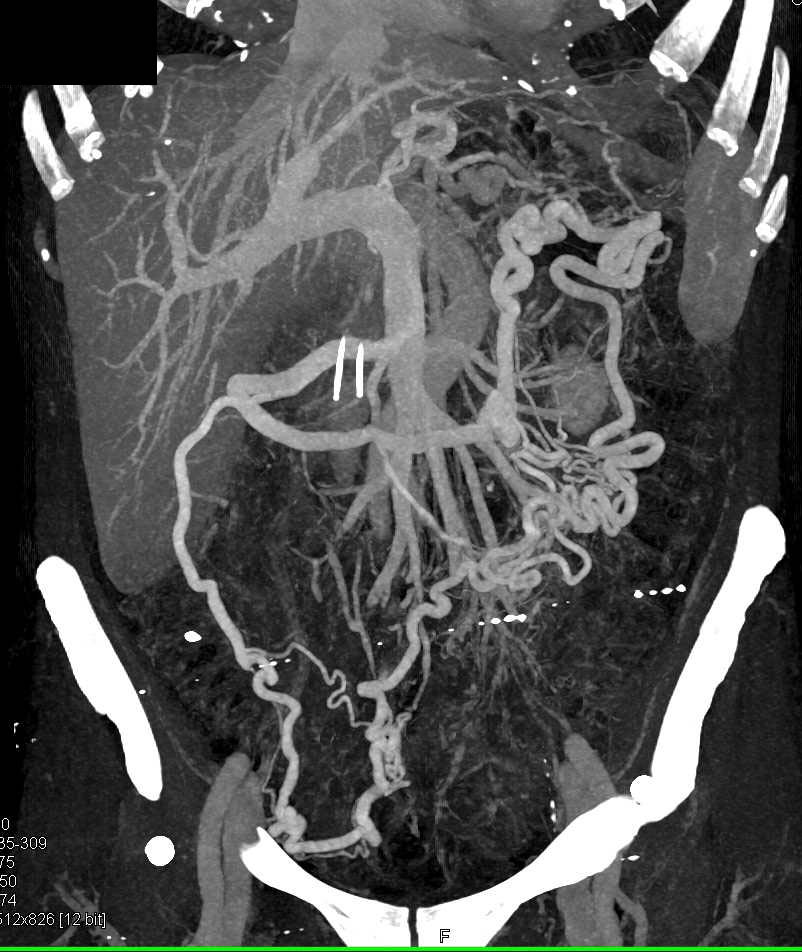 Emphysematous Gastritis with Collateral Vessels