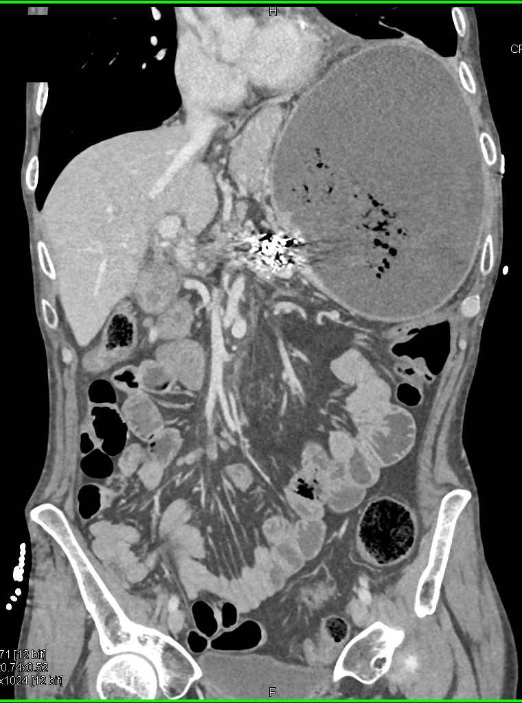 Gastric Outlet Obstruction - CTisus CT Scanning
