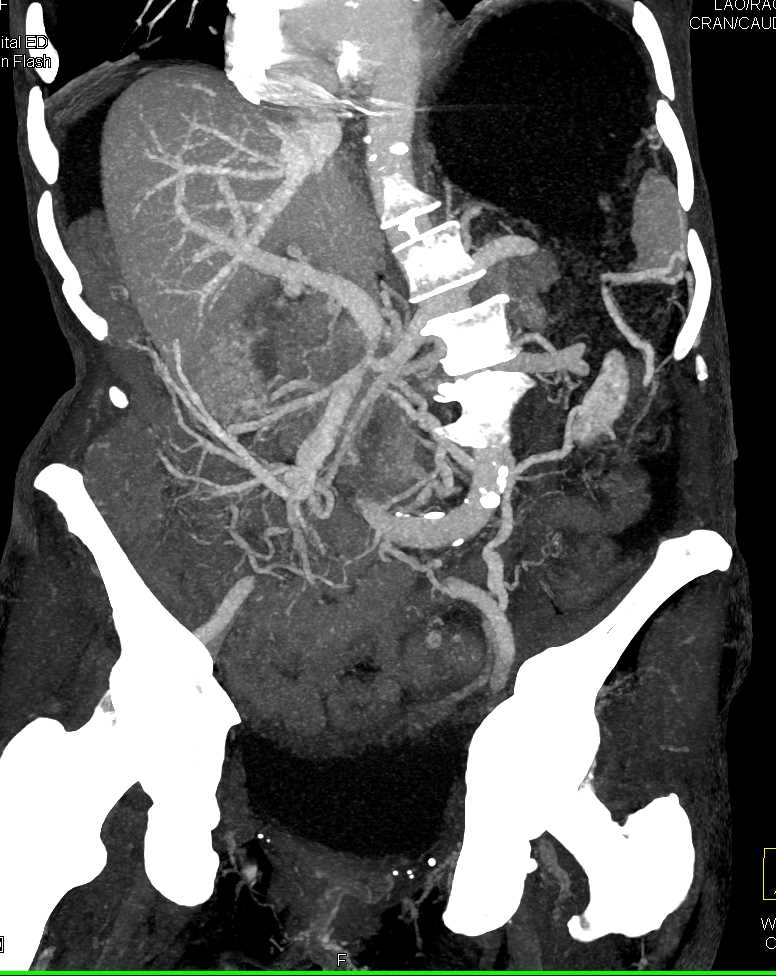 Duodenal Carcinoma with Ulcer Obstructs the Stomach - CTisus CT Scanning