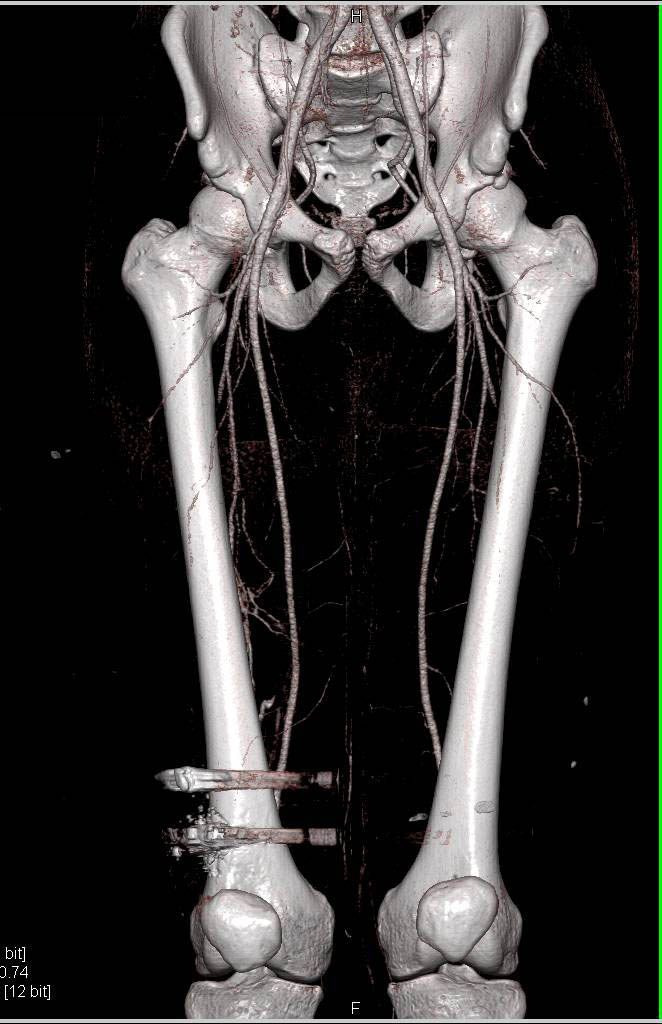 CTA Runoff s/p Gunshot Without Vascular Injury