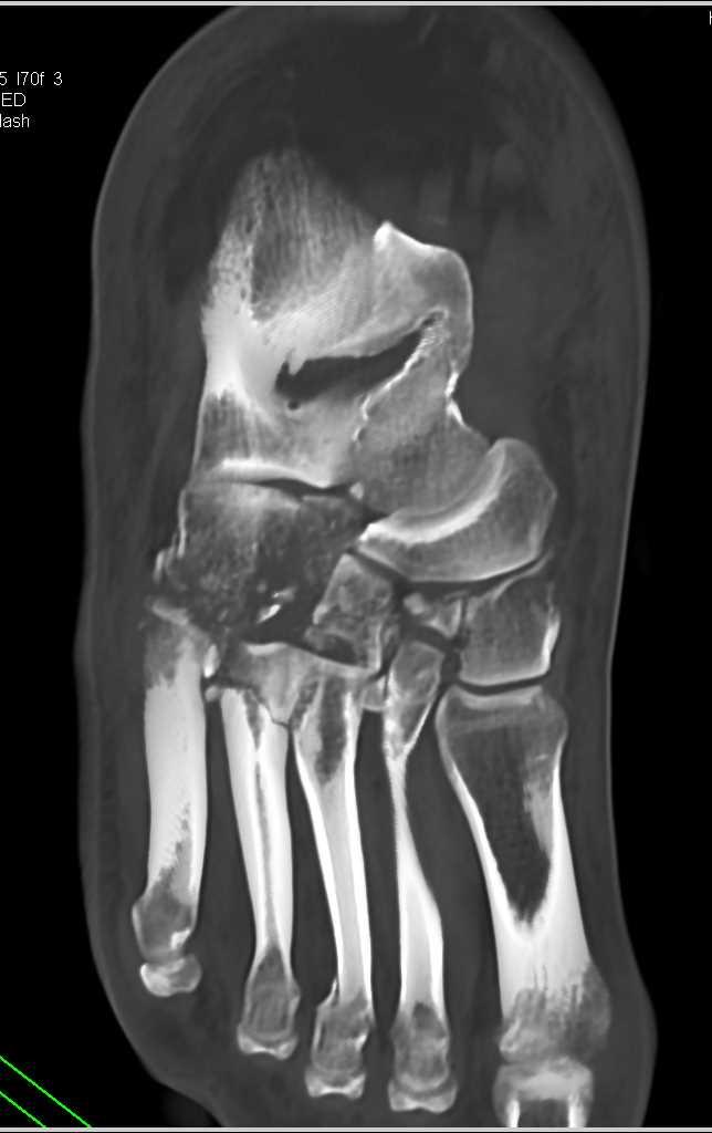 lisfranc injury  multiple fractures  tarsals  metatarsals trauma case studies