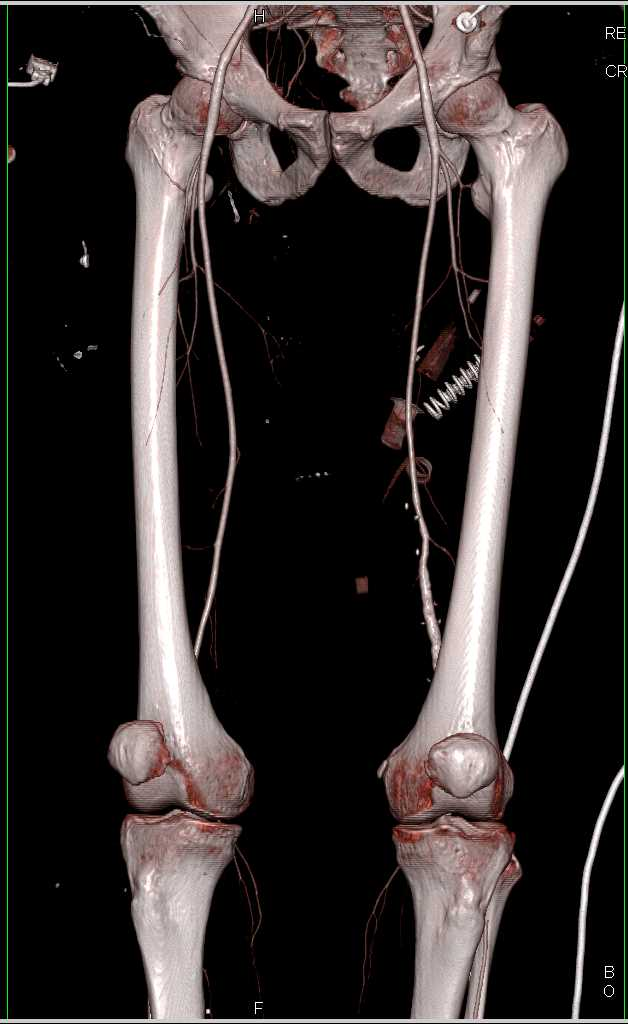 GSW with Renal, Bowel and Bone Trauma