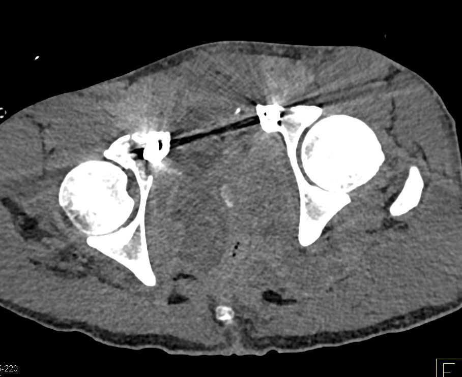 GSW Pelvis with Large Hematoma - CTisus CT Scanning