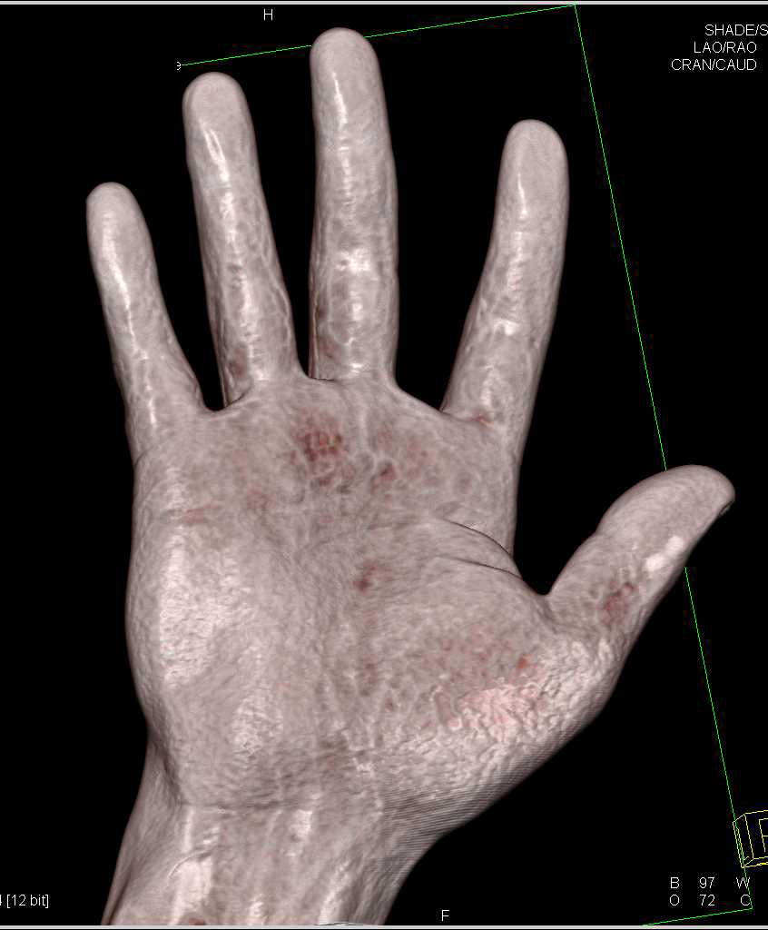 Fracture Proximal Phalanx 5th Digit - CTisus CT Scanning