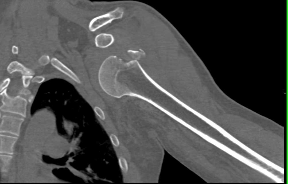 Fracture and Dislocation Left Shoulder with Poor Reduction - CTisus CT Scanning