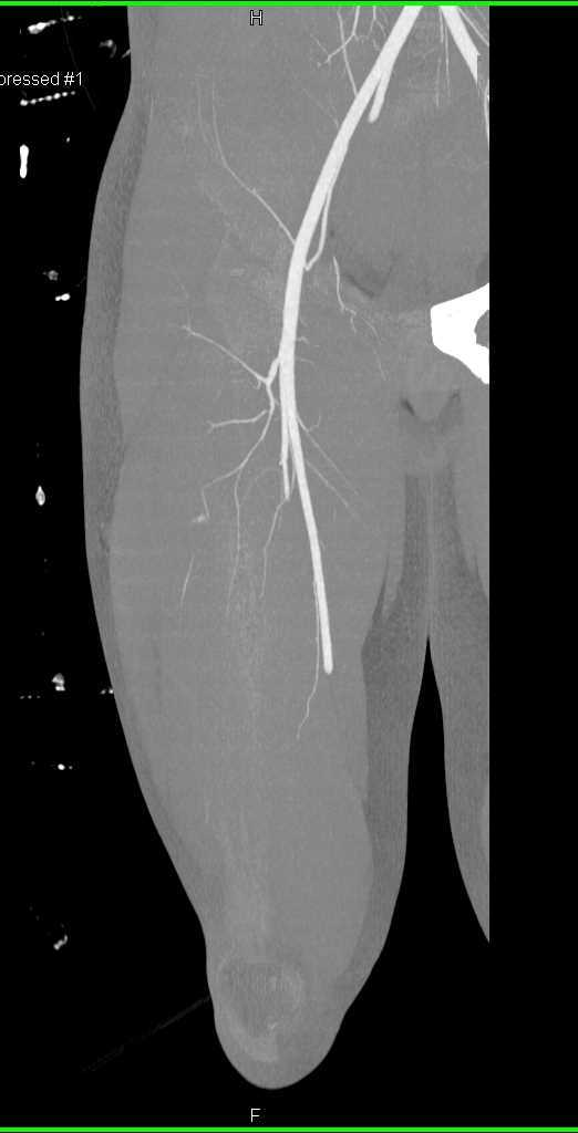 Stab Wound Thigh with Small Vessel Bleed - CTisus CT Scanning