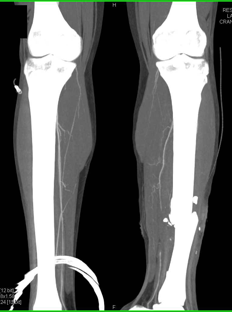 Comminuted Fracture of Left Tibia and Fibula with Vascular Occlusion - CTisus CT Scanning