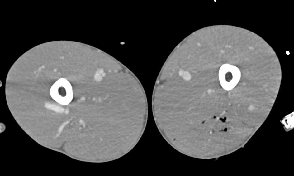 GSW Thigh Without Active Bleeding - CTisus CT Scanning