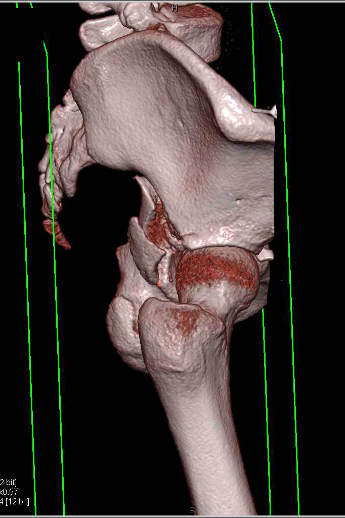 Comminuted Acetabular Fracture with Bone Removal of Femur - CTisus CT Scanning