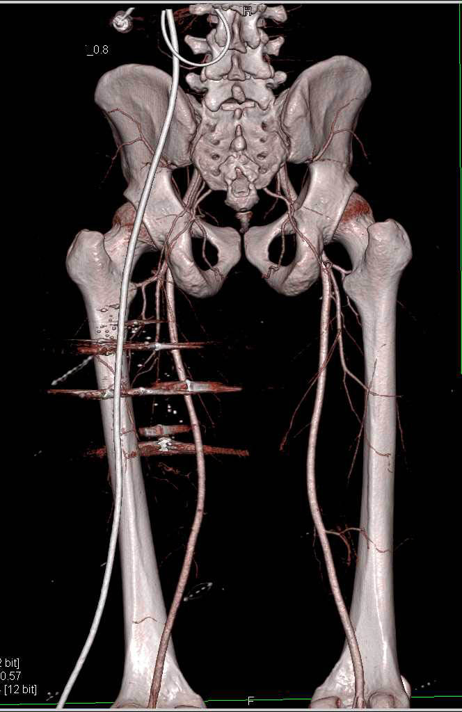 GSW Thigh without Active Bleeding or Vessel Injury - CTisus CT Scanning