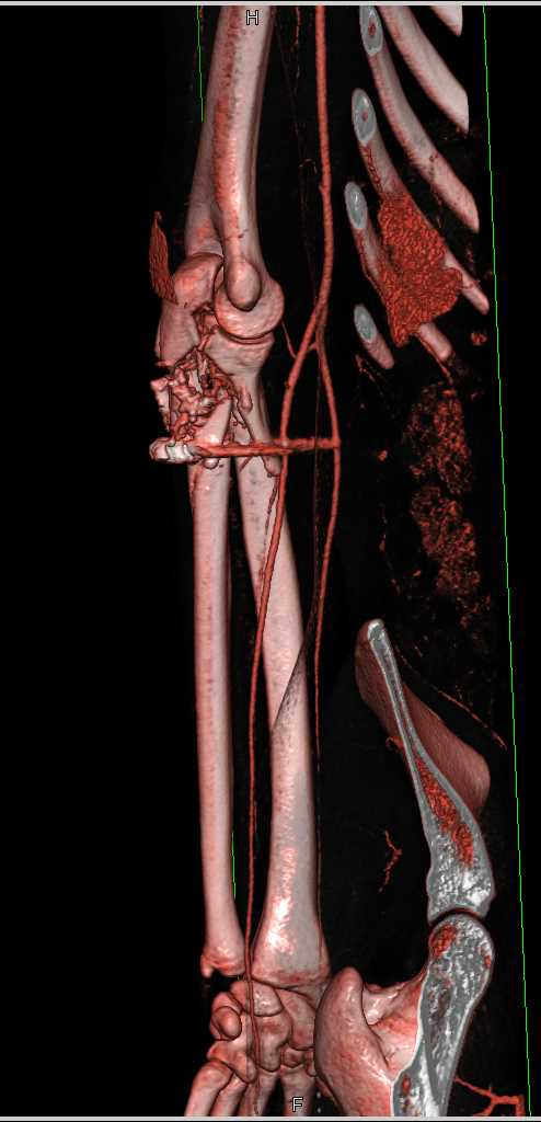 Comminuted Ulnar Fracture - CTisus CT Scanning