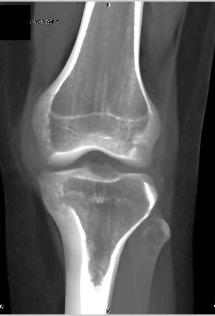 Patella Fracture with hematoma - CTisus CT Scanning