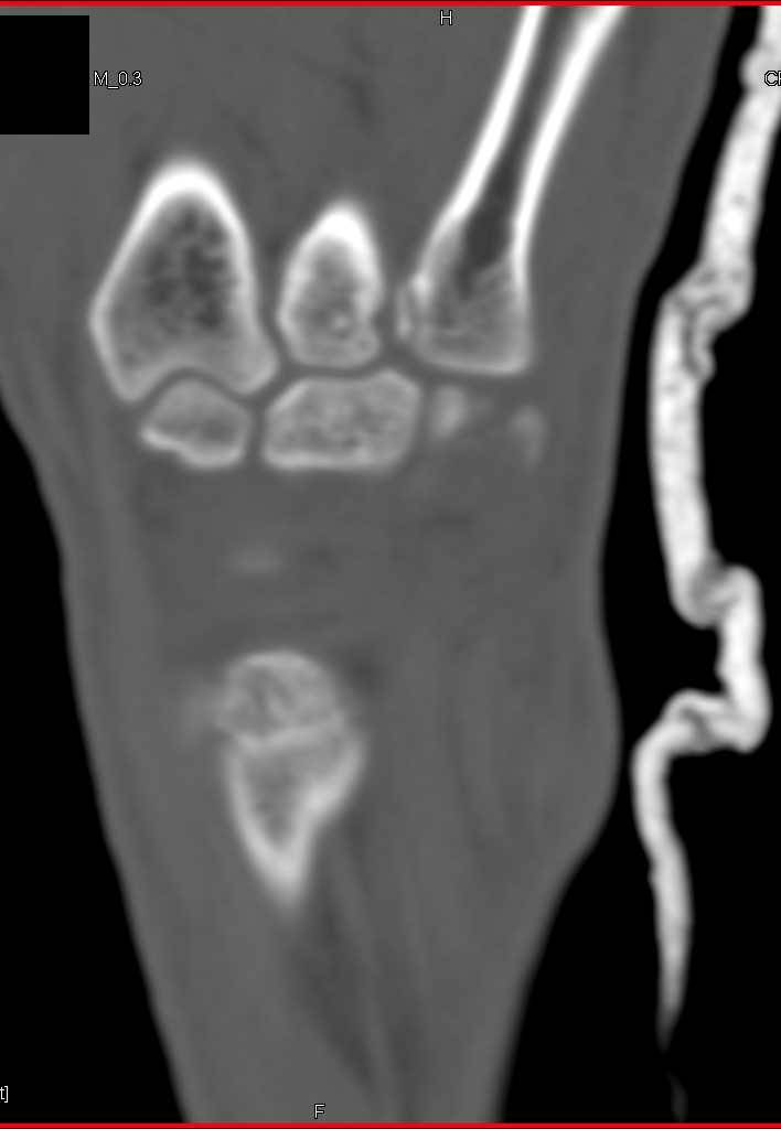 Wrist trauma with Multiple Fractures - CTisus CT Scanning
