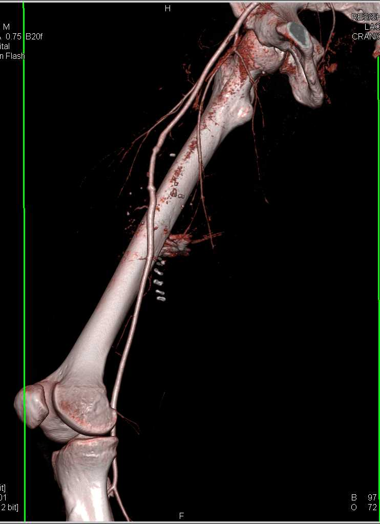 GSW Without Vascular Injury - CTisus CT Scanning