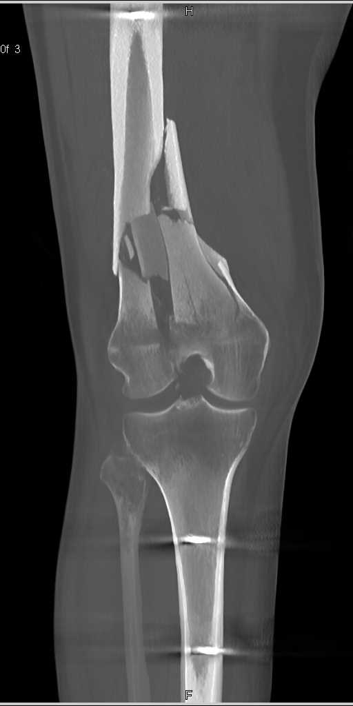 Fracture of the Distal Femur - CTisus CT Scanning