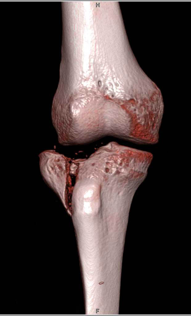 Tibial Plateau Fracture - CTisus CT Scanning
