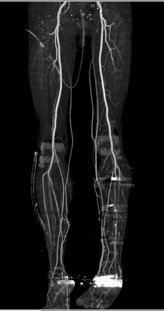 Tibia and Fibular Fractures with ORIF - CTisus CT Scanning