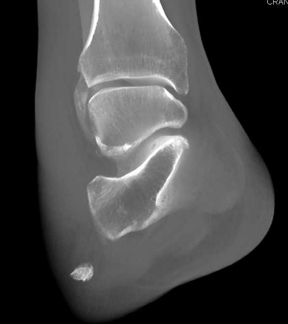 Lisfranc Fracture Dislocation - CTisus CT Scanning