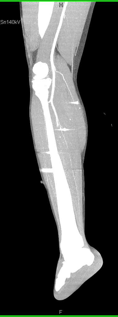 GSW Calf with Vascular Injury - CTisus CT Scanning