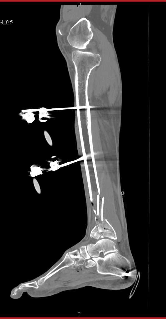 Fractures of Distal Tibia and Fibula in External Fixation - CTisus CT Scanning