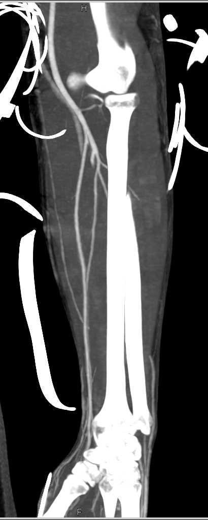 Normal CTA Forearm Post Trauma - CTisus CT Scanning