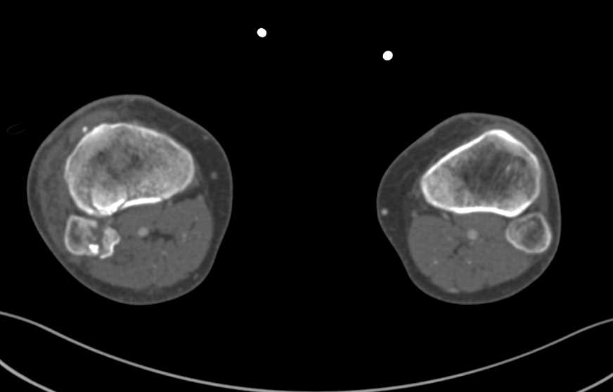 Trauma with Tibia and Fibula Fractures but no Vascular Injury - CTisus CT Scanning