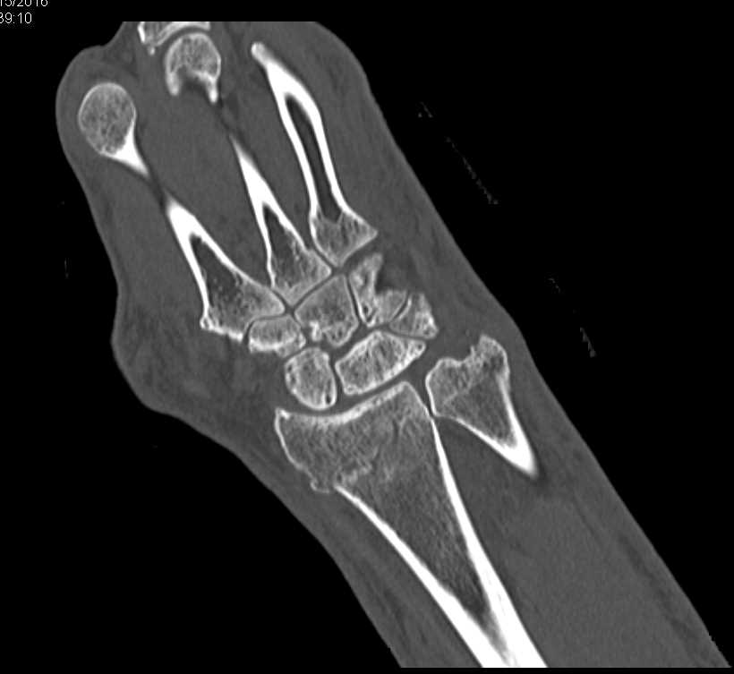 Impacted Fracture Distal Radius and Ulna - CTisus CT Scanning