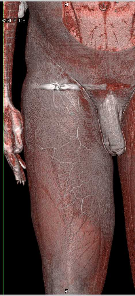 GSW Thigh Without Vascular Injury - CTisus CT Scan