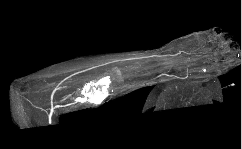 GSW with Radial Fracture and Injury to Radial Artery - CTisus CT Scanning