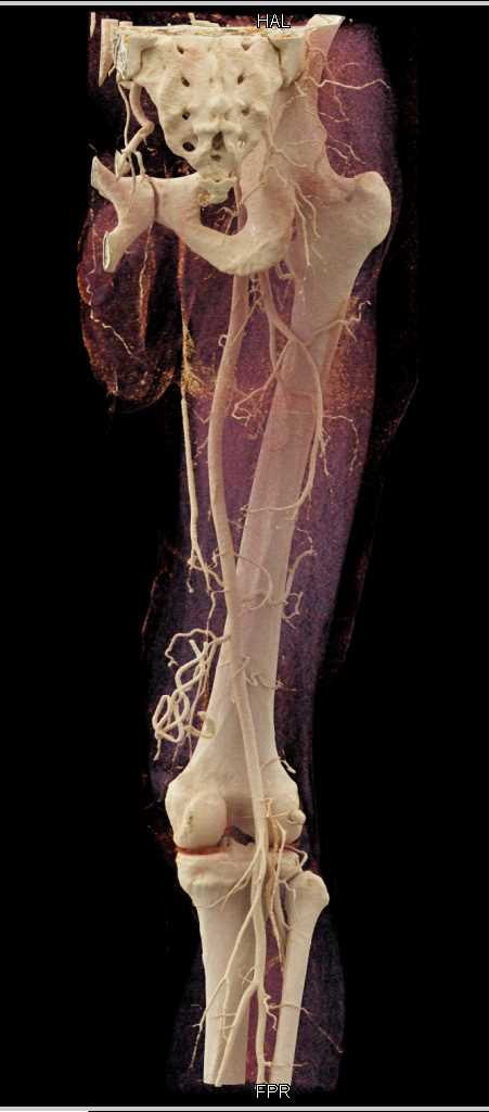 Stab Wound Thigh with Muscle Injury - CTisus CT Scan