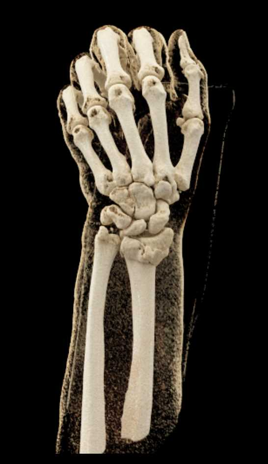 Distal Radius and Ulna Fractures with Cinematic Rendering - CTisus CT Scan