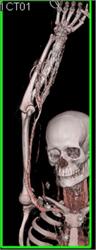 Stab  Definition of Stab by MerriamWebster