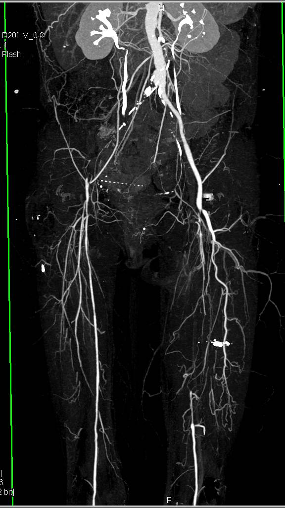 Cta Runoff With Occlusion Of The Right Common Iliac Artery And Left