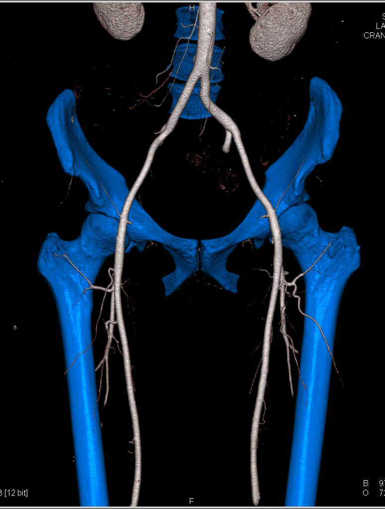 Normal CTA of the Pelvis and Thigh with Bone Removal - Vascular Case ...