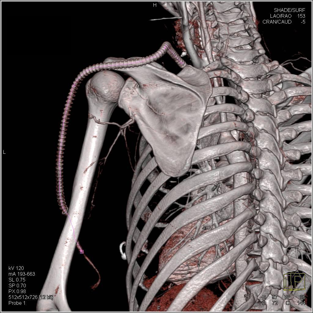 3D Demonstration of Subclavian Artery to Brachial Artery Graft ...