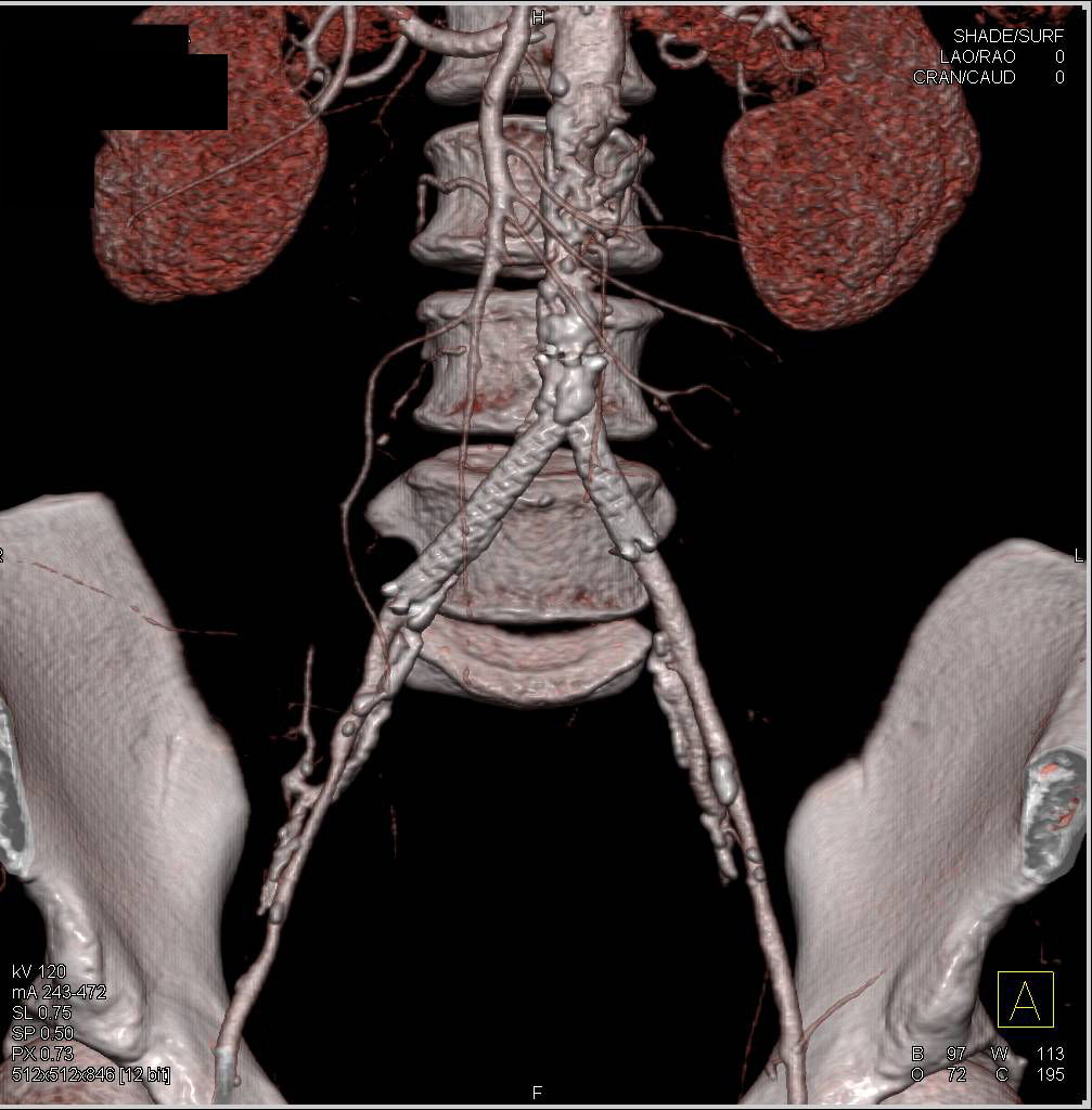 Impressive Retroperitoneal Fibrosis with Encasement and Arterial Stents
