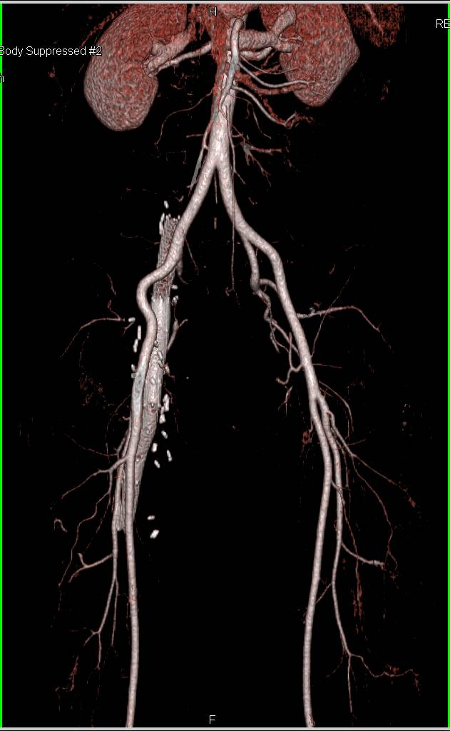 CTA with Right Iliac Venous Stent which Narrows - CTisus CT Scanning