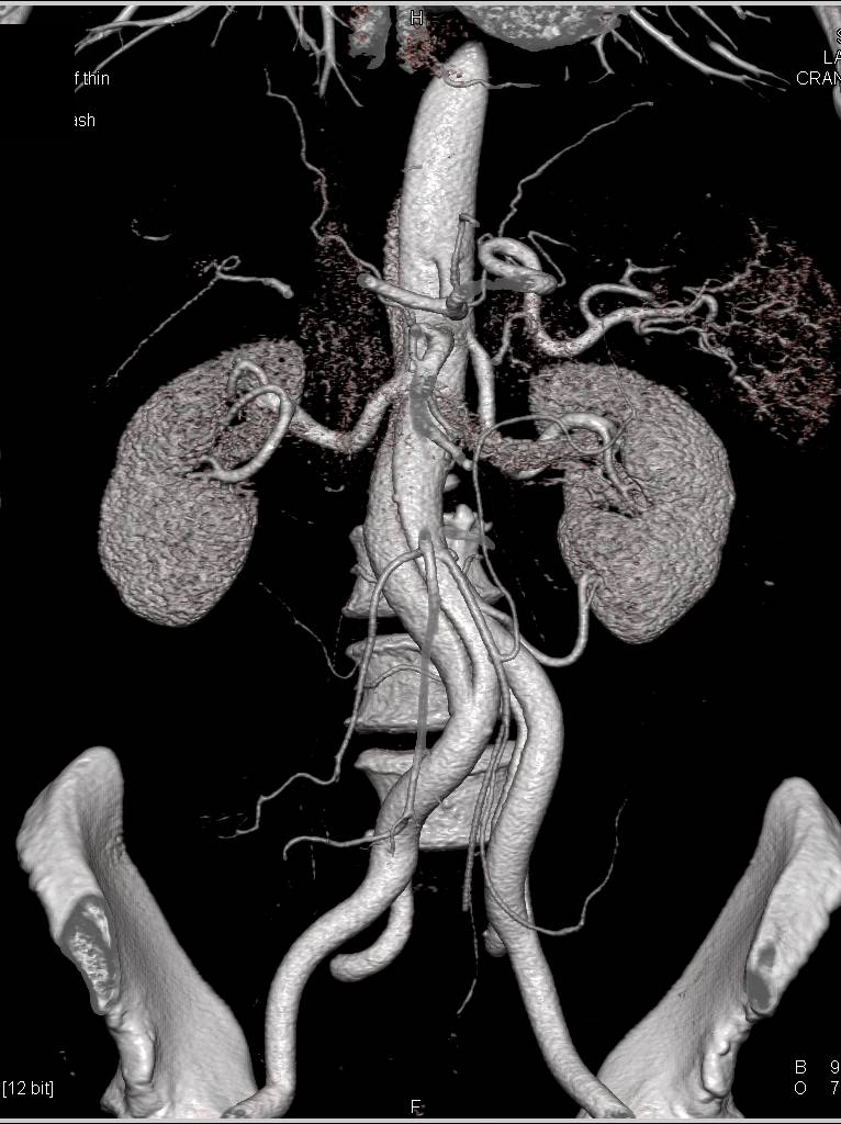 Type B Dissection Extends into the Right Common Iliac Artery
