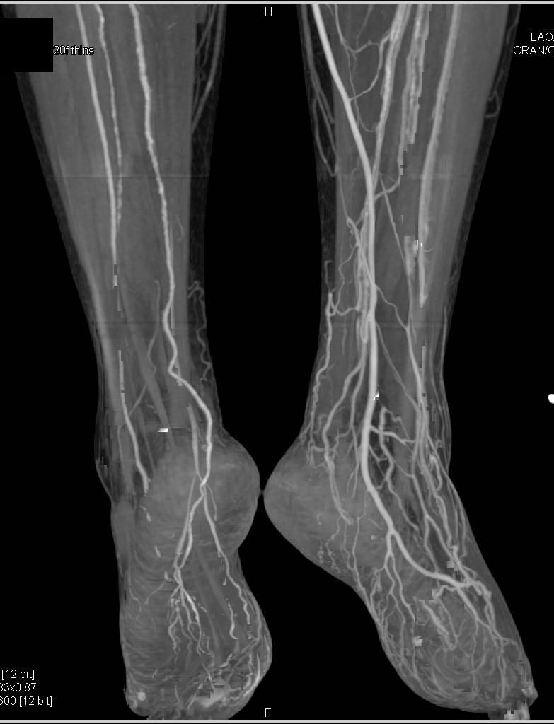 CTA Runoff with Early Flow to the Left Deep Venous System of the Calf