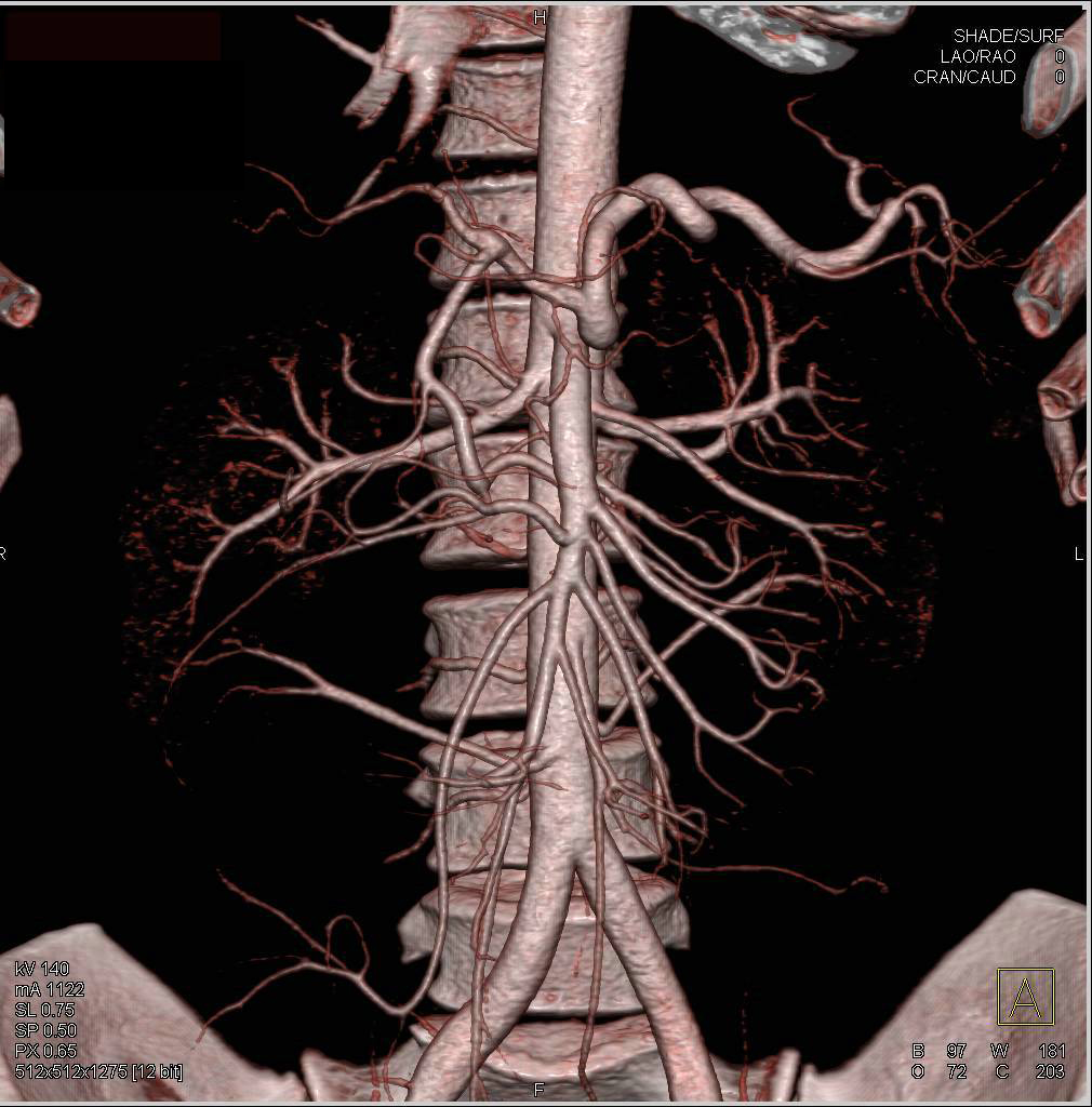 Median Arcuate Ligament Syndrome with Narrowed Celiac Artery