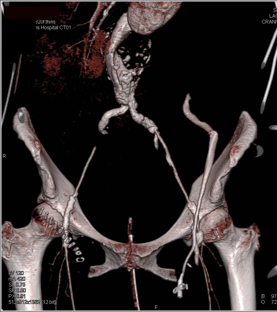 Aortic Aneurysm with Extensive Thrombus Seen on 3D Maps - CTisus CT Scanning