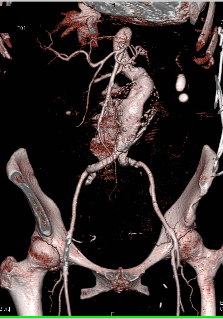 Aortic Aneurysm and Retroperitoneal Hemorrhage