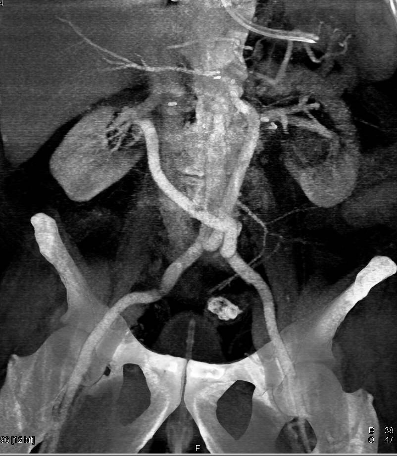 Complex Vascular Repair with Leak off Aorta due to Vascular Trauma and Leak - CTisus CT Scanning