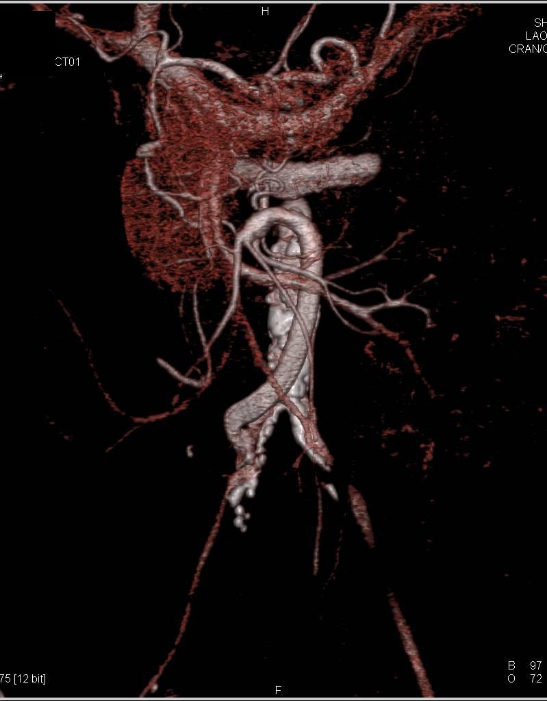 Graft Placed to Right Iliac Artery to Mesenteric Arcade - Vascular
