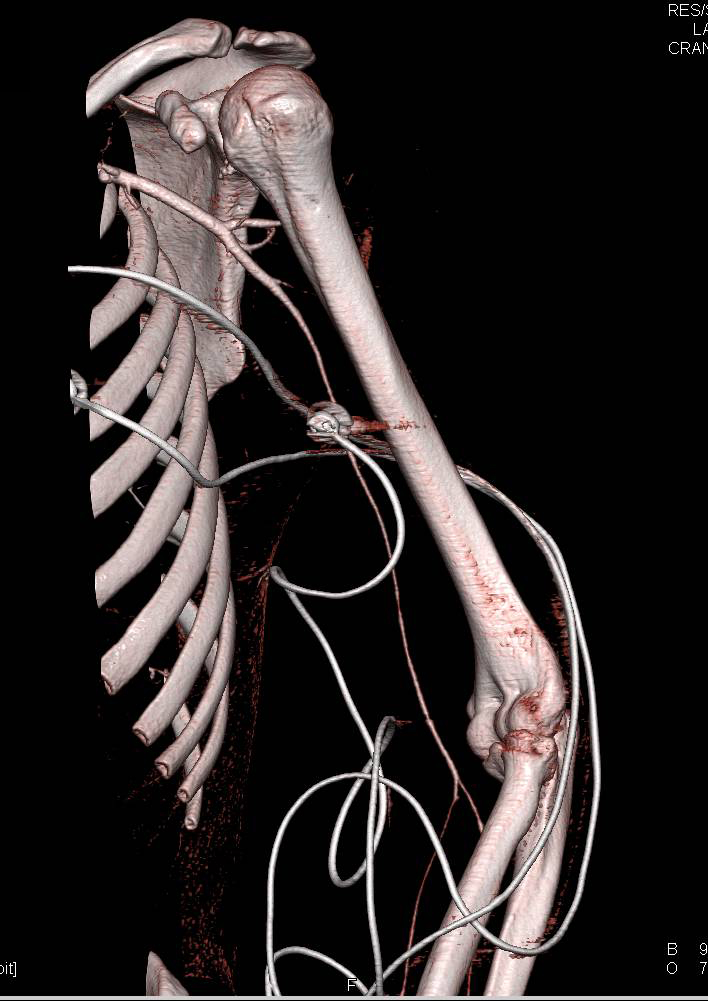 Spasm in the Left Brachial Artery Without Active Bleed
