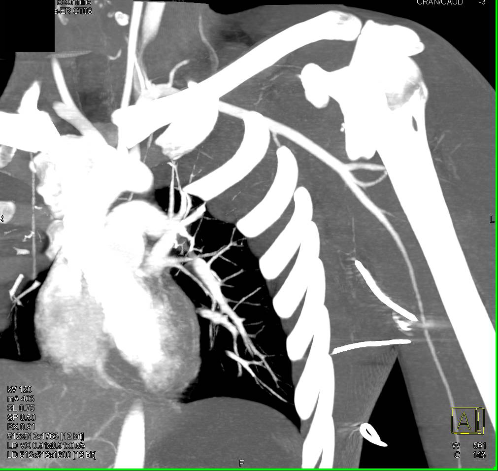 Spasm in the Left Brachial Artery Without Active Bleed - CTisus CT Scanning