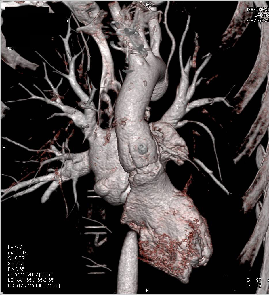 Focal Dissection of the Left Subclavian Artery in Loeys Dietz Syndrome